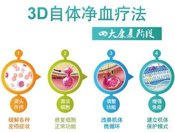 3D自体净血疗法