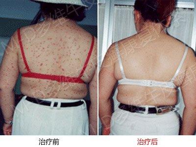 寻常型牜皮癣的发病的原因