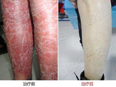 皮肤干燥牛皮癣患者能用护肤品吗