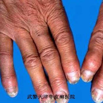 怎样治疗指甲处的牛皮癣