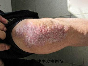 牛皮癣的病因具体有哪些